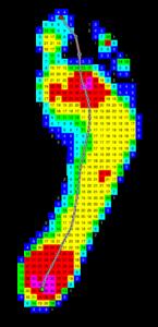 dynamischer Fußabdruck eines Plattfußes